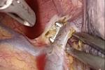 Imagem_cirurgia
